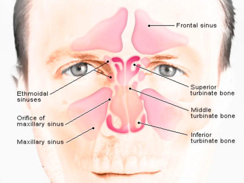 Puntos de acupuntura para la sinusitis