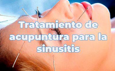 Tratamiento de acupuntura para la sinusitis
