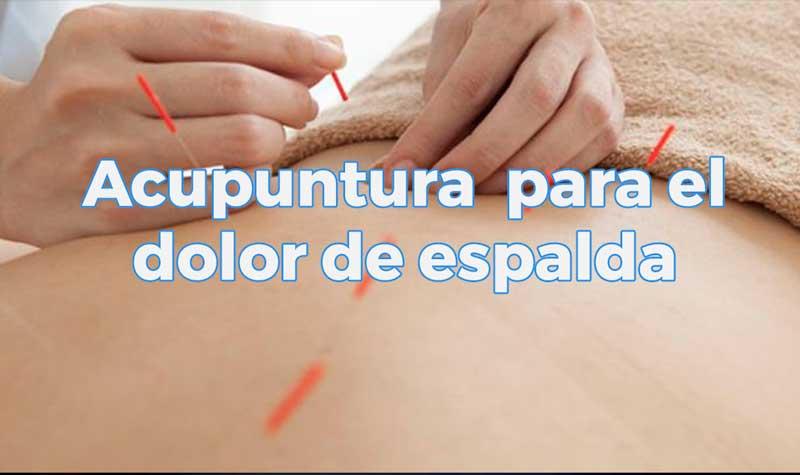 Tratamientos de acupuntura para el dolor de espalda