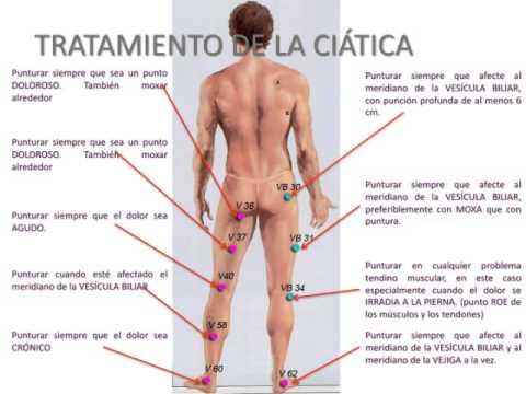 Puntos de acupuntura para la ciática